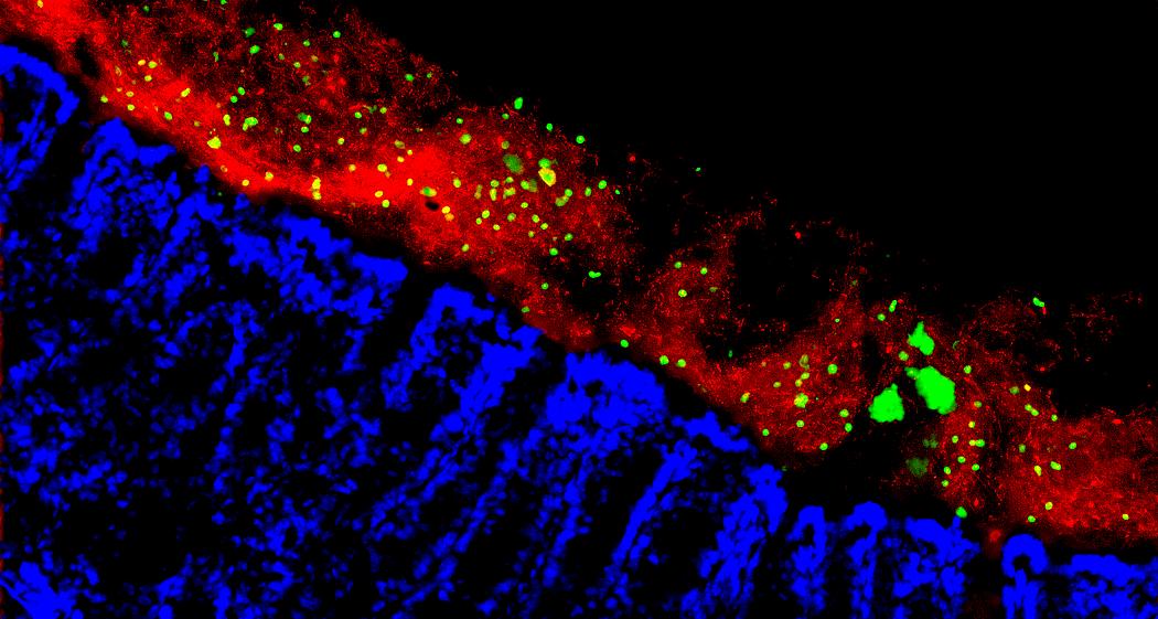 Gut fungi bacteria